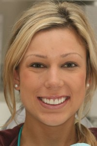 full face photo of patient smiling after dental veneers