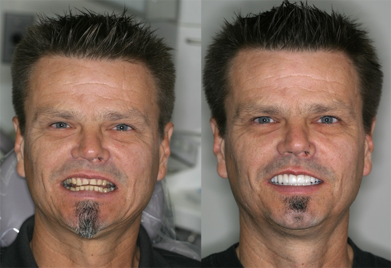 Before and After Reconstructive Dentistry