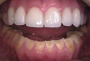 Worn teeth, By Jeffrey Dorfman on Wikimedia