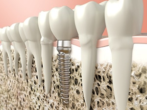 Dental Implant that Moves