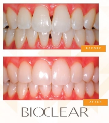 Fill Black Triangles in Irvine with BioClear