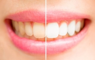 A before & after side by side comparison of teeth whitening