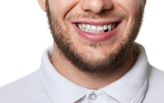 Man with short beard smiles, showing off his missing tooth