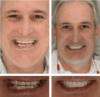 before and after comparison showing a six month smiles patient
