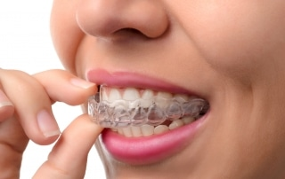 Woman placing Invisalign clear braces in her mouth