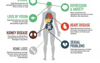 Rice Dentistry Sleep Apnea Infographic
