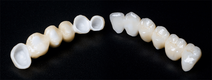 Zirconio Crowns