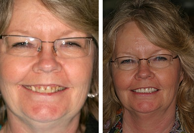 A woman smiling with her new dental implants from Rice Dentistry in Irvine California, Orange County