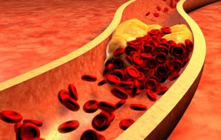 Fat from Oral Bacteria–Not Food–May Be Clogging Your Arteries