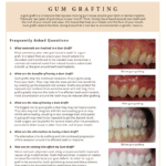 Gum Grafter questions and answers on alternatives