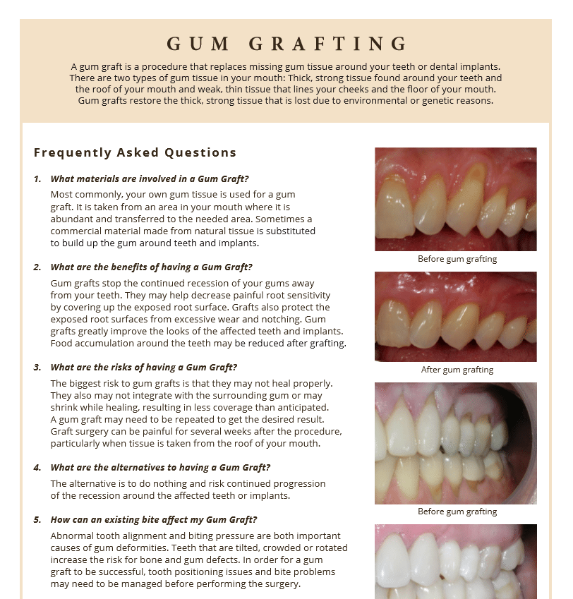 Gum Graft Recovery