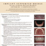 FAQ's on implant supported bridge and alternatives