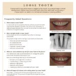 Information on the causes of loose teeth