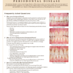 Periodontal Disease information