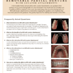 Removable partial denture information