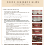 Tooth colored information