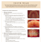 Tooth wear and decay FAQ's