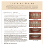 Teeth Whitening FAQ's