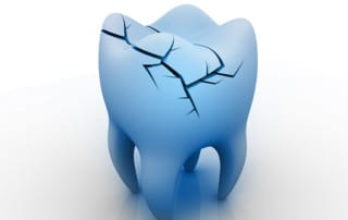 Cracked Tooth Risks | Dentist Orange County