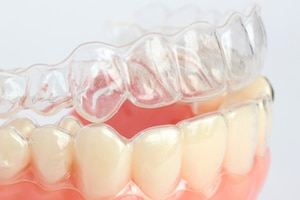 The difference between Invisalign and Dental Crowns