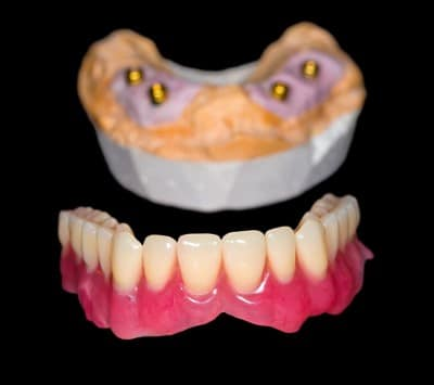 Implant retained dentures resting on a black felt tabletop