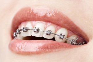 Metal braces are more effective than Invisalign when the teeth need a lot more work