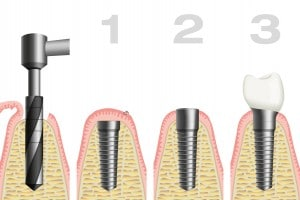 Orange County dental implant history