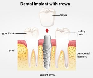 Ilustration of the dental implant and the crown