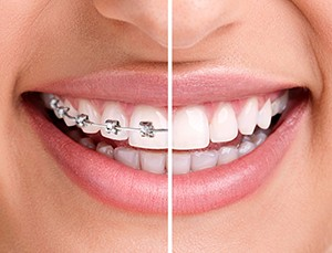 Improved smile with braces