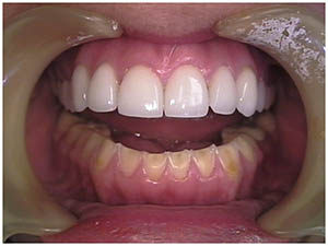 Bulimia Teeth Damage by DentalSchoolProf on Wikimedia