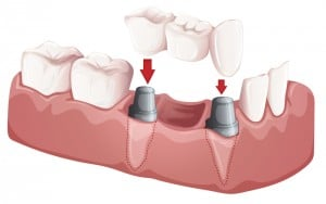 Orange County Dental Implant Restorations Irvine